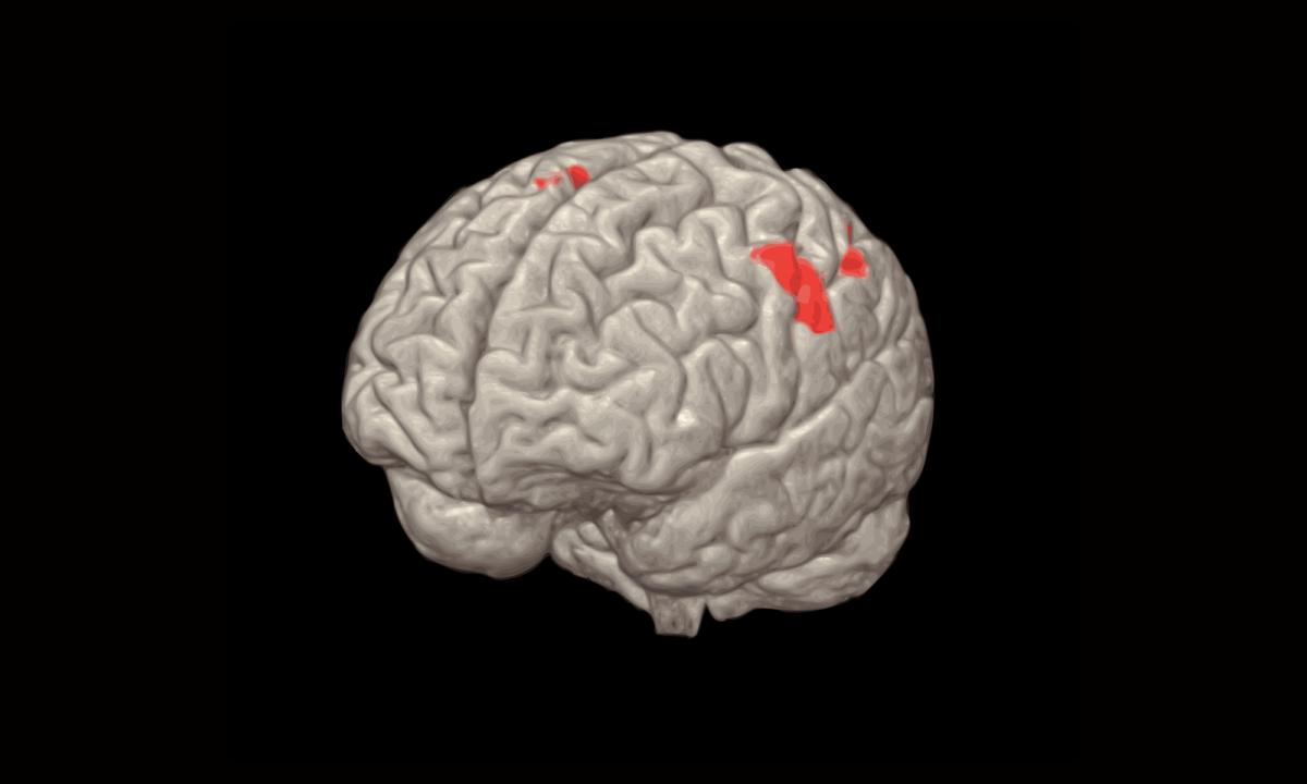 Socrates fMRI